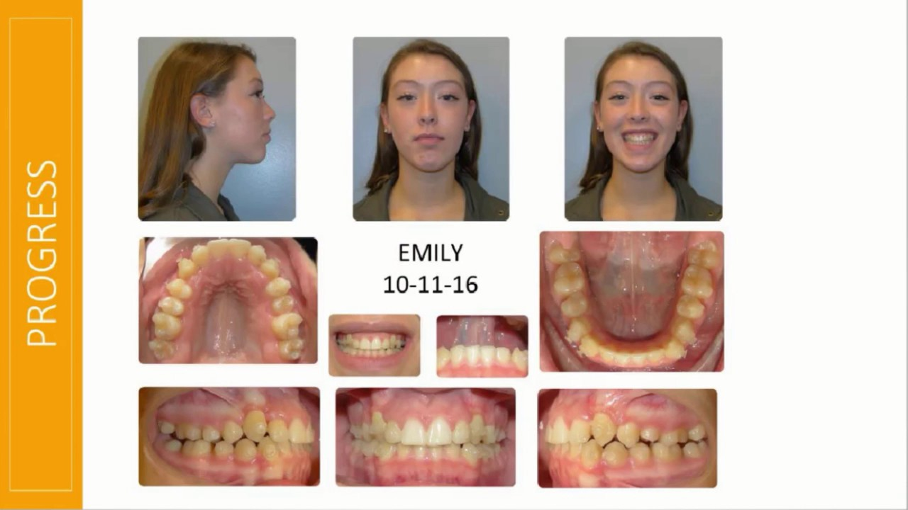 invisalign case study williams Indeed, only a relatively small proportion of this potential population seeks treatment because of the drawbacks associated with conventional treatment, but align's process overcomes many of these shortcomings (as described in case study).