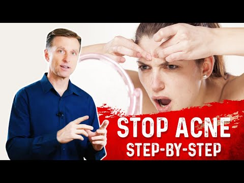How to Permanently Eliminate Acne