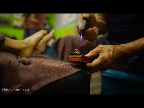 A7iii - The Ancient chinese art of Moxibustion and hammer (Penang)