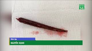 Nam thanh niên cầm que xiên thịt đâm bạn xuyên tủy sống | VTC14