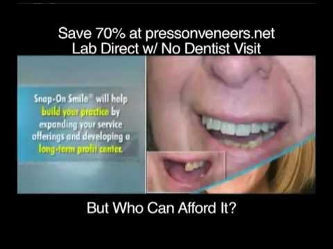 how to clean snap on smile