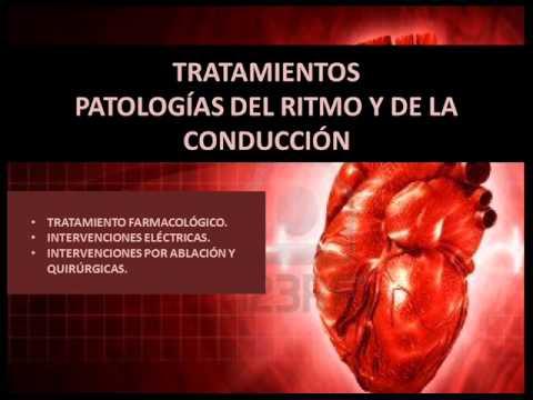 TRASTORNOS DE CONDUCCION CARDIACA EPUB DOWNLOAD