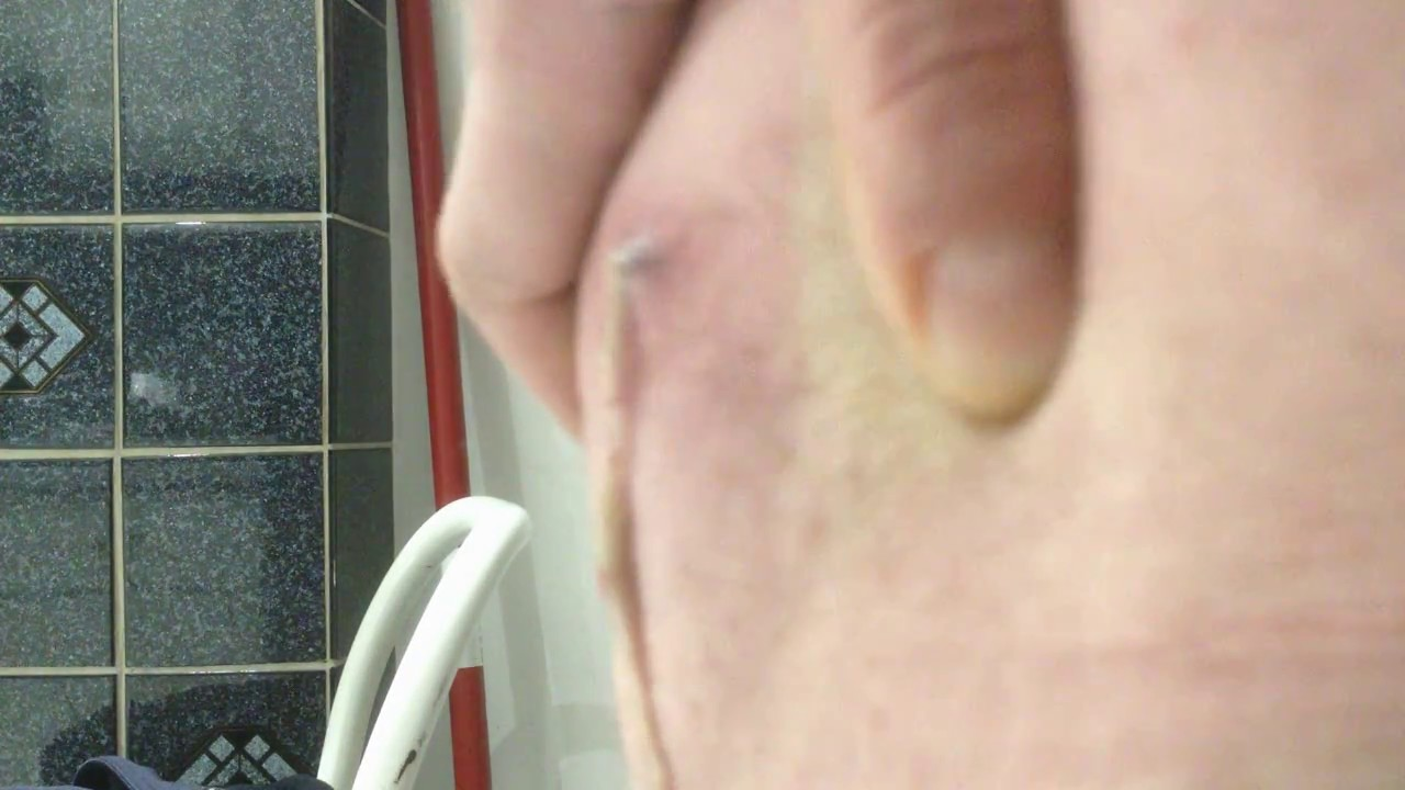 Pimple or cyst oozing poppin explosion on bum - YouTube