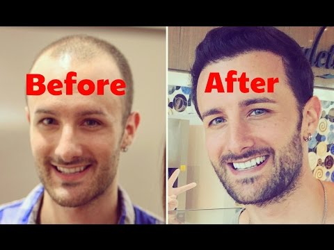 FULL DISCLOSURE - Post Operation Hair Transplant Surgery