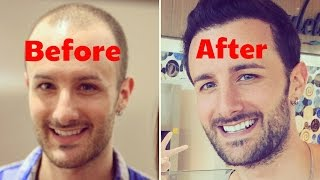 FULL DISCLOSURE - Post Operation Hair Transplant Surgery