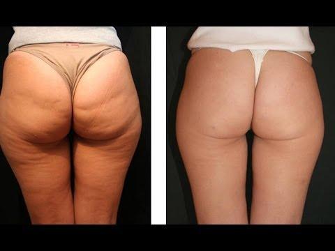 Reduire cellulite fessier