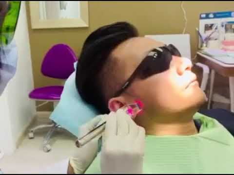 Low-Level Laser Therapy By Dr. Chandan Bagde, General Dentist