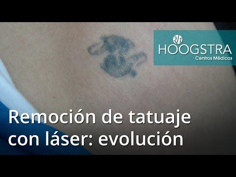 Remoción de tatuaje con láser: evolución (16103)