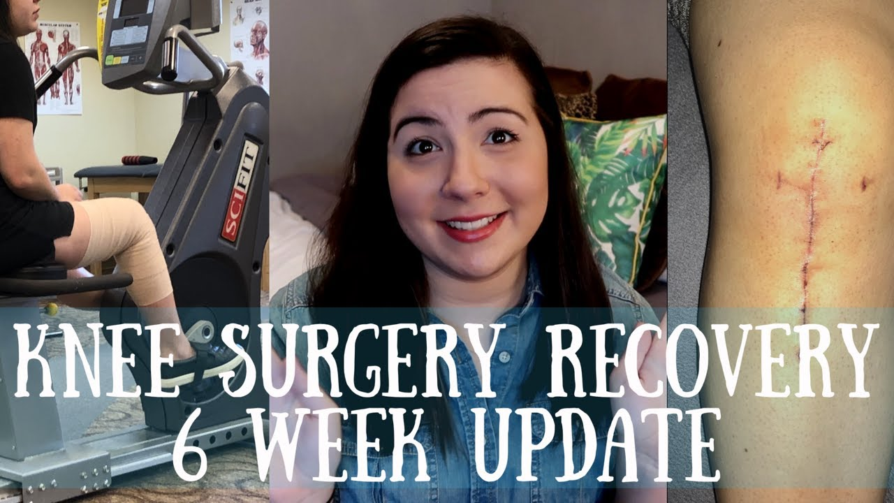 Download Knee Surgery Recovery 6 Week Update | TTO, MPFL, OCA & Lateral Lengthening