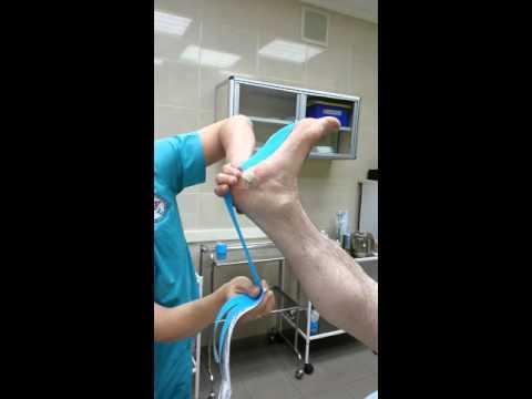 Медицинская желчь при пяточной шпоре: эффективность применения