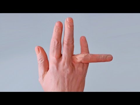DISLOCATED FINGER!