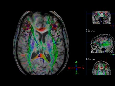 How brain scans may predict relapse in drug addiction