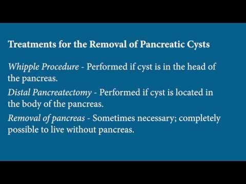 hqdefault - Pancreatic Cyst Back Pain