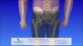 как лечить спондилоартроз пояснично крестцового отдела позвоночника