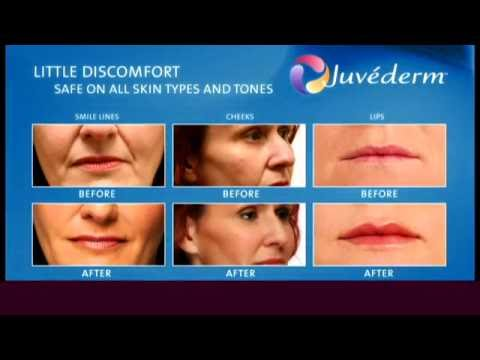 Soft Lift video by Allergan: BOTOX & Juvederm anti-aging treatment