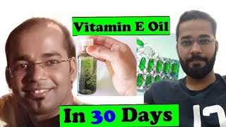 Easiest IDEA To Make Evion 400 Vitamin E  Capsule Hair Oil For Fast Hair Growth