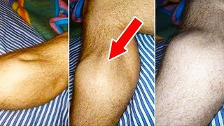 10 Reasons Why Your Legs May Cramp At Night And What to Do About it