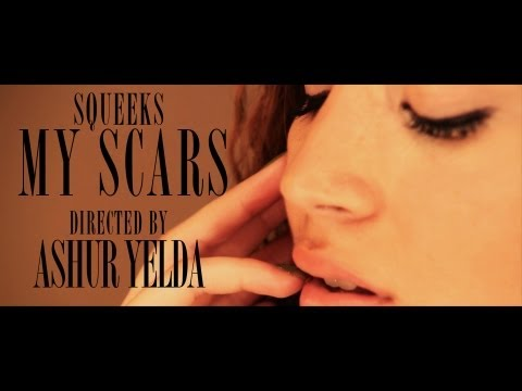 Squeeks - MY SCARS - Prod by @Westyldn [OFFICIAL MUSIC VIDEO] @SqueeksTP @Phatlineprod