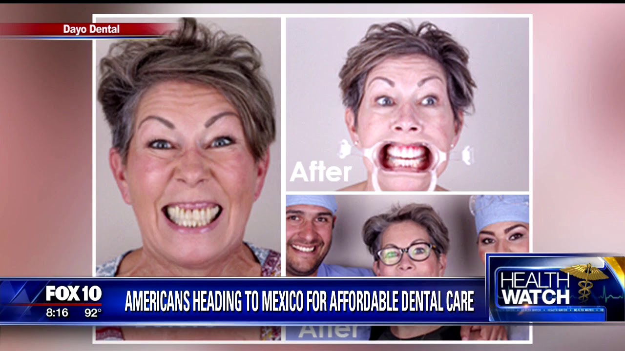 Dayo Dental - Travel to a Dentist in Los Algodones, Mexico for Dental  Implants, Crowns, and Veneers