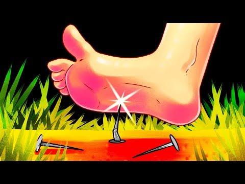 Что будет, если ржавый гвоздь воткнется вам в ногу?
