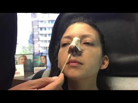 How to clean your nose after rhinoplasty
