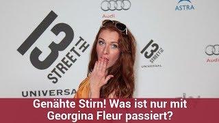 Genähte Stirn! Was ist nur mit Georgina Fleur passiert?   CELEBRITIES und GOSSIP