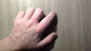 Разрыв сухожилия левой руки. 60 дней (2 месяца)(20 дней - http://youtu.be/Hv6nbGmeTiI 40 дней - http://youtu.be/6cgARnYBgGY., 2013-02-05T12:48:44.000Z)