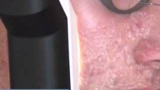 Anesis Spa - Ellipse Acne Treatment London Thumbnail