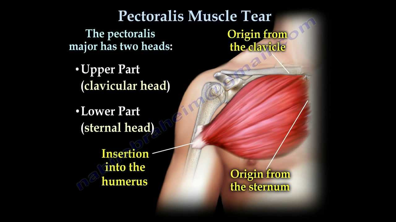 Body Of Sternum Diagram Pectoralis Muscle Tendon Tear Everything You Need To