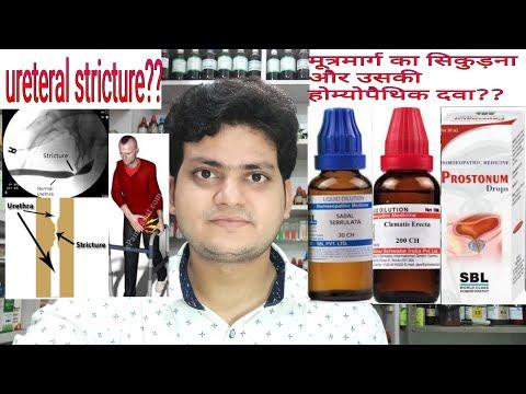Urethral stricture(मूत्रमार्ग निंदा)! Homeopathic medicine for Urethral Stricture??