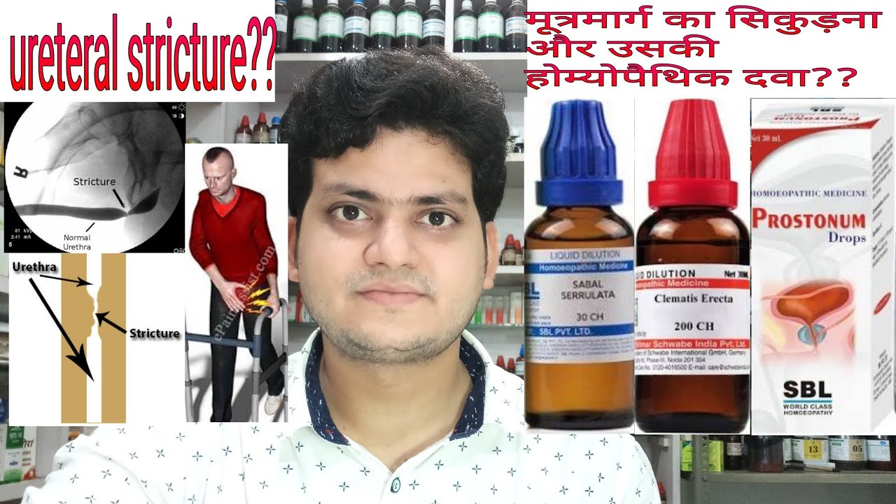 Urethral stricture(मूत्रमार्ग निंदा)! Homeopathic medicine for Urethral  Stricture??