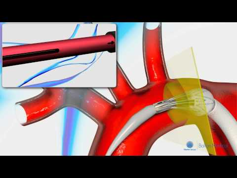 Deployment of the Relay Aortic Stentgraft