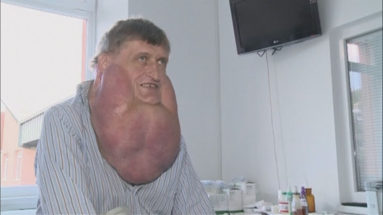 Man has giant six kilogramme tumour removed from his face
