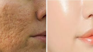 How to get rid of Large OPEN PORES permanently & Acne Scars NATURALLY AT HOME