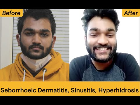 Seborrhoeic Dermatitis Allergic Rhinitis and Hyperhidrosis cure by Homeopathy