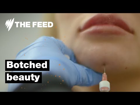 Botched Beauty: Horror Scenes from Australia's Backyard Beauty Clinics