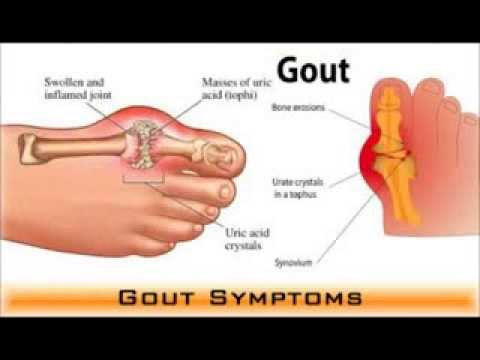 gout remedies cherry juice acute gout in ankle how to reduce uric acid medication