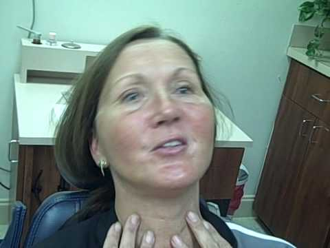 Facial waviness after a facelift — img 10