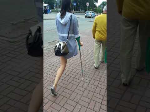 amputee girl on crutches