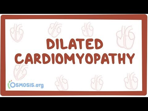 Dilated cardiomyopathy (DCM) - an Osmosis preview