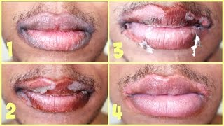 tca chemical peel on lips   application results   session 4
