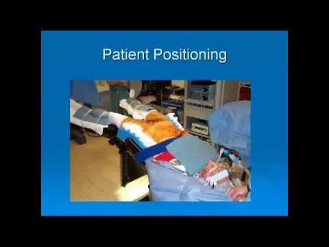 Robotic Assisted Laparoscopic Radical Prostatectomy Youtube