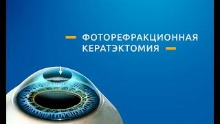ФРК (фоторефракционная кератэктомия) - операция лазерной коррекции зрения(Видео, которое демонстрирует, как проводится операция лазерной коррекции зрения методом ФРК (фоторефракци..., 2015-02-25T11:29:52.000Z)