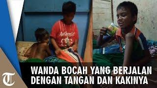 Download Video Wanda, Bocah Asal Padang yang Berjalan Menggunakan Tangan dan Kaki MP3 3GP MP4