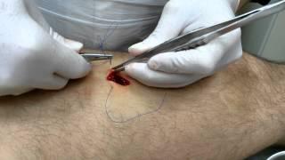 Операция по удалению липомы (жировика) хирург Москва(Удаление небольших липом (жировиков) производится под местной анестезией и занимает 5-10 минут. Подробнее..., 2014-10-22T17:36:35.000Z)