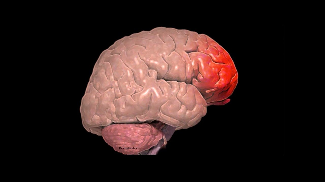 what is a cerebral contusion youtube
