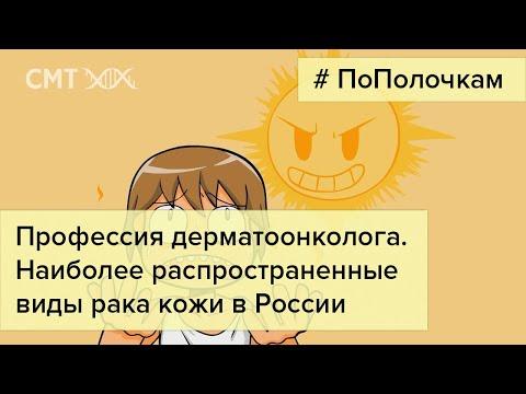 Самые РАСПРОСТРАНЕННЫЕ виды РАКА КОЖИ в России