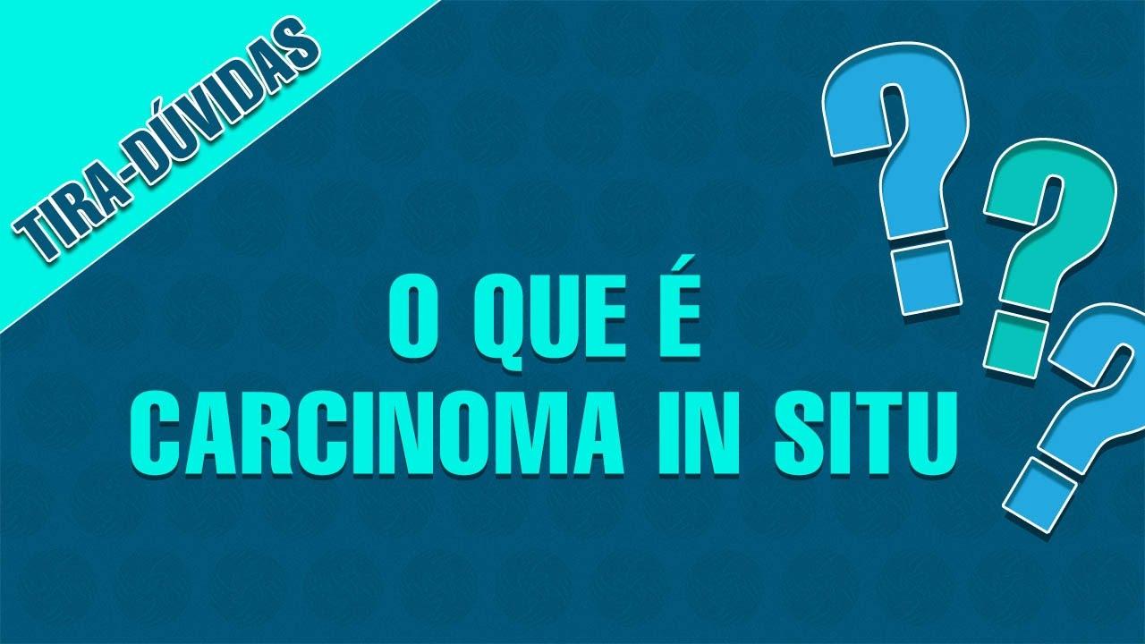tratamento gestation carcinoma ductal fashionable situ
