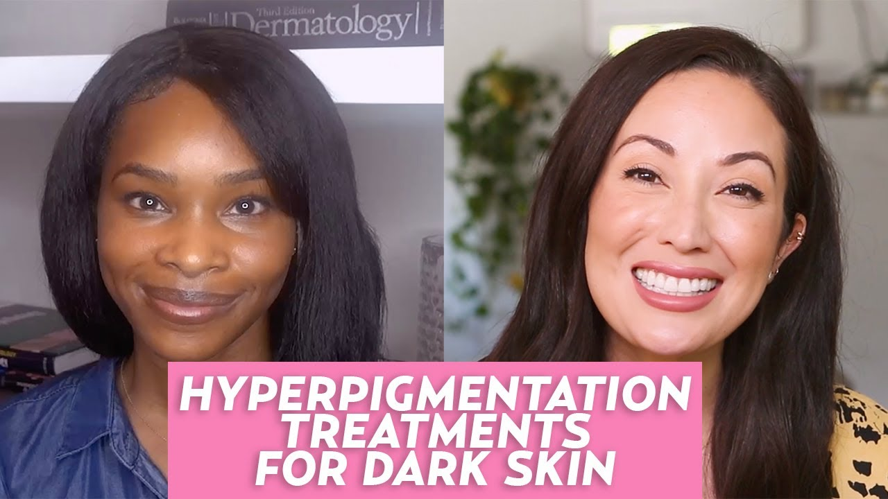 Hyperpigmentation in Dark Skin Tones: A Dermatologist Shares Tips & Treatments!