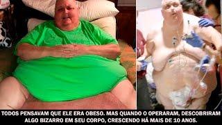 Todos pensavam que ele era obeso  Mas quando o operaram...